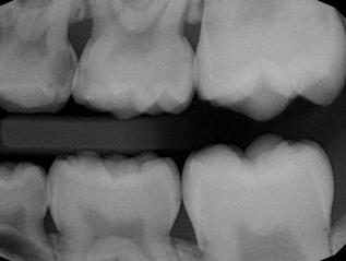 Léčba zubního kazu, endodoncie, estetickástomatologie