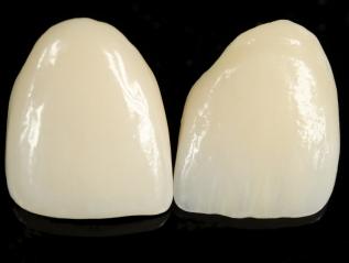 Protetika, celokeramické zubnínáhrady